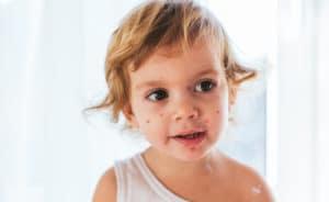 Comment guérir la varicelle naturellement?